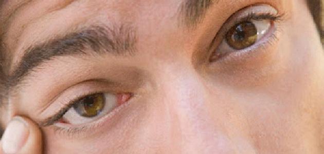 أسباب رفة العين اليسرى