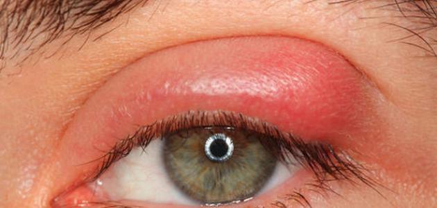 حزمة لوضع ملحوظة غير مرض الم في جفن العين من الداخل Dsvdedommel Com