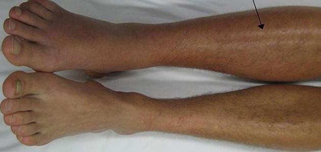 تخثر الدم في الساق