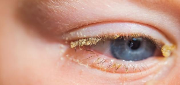 علاج رمد العين للأطفال