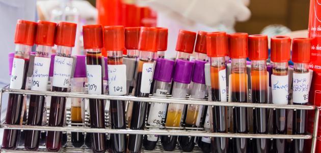 تحليل الدم وأنواعه