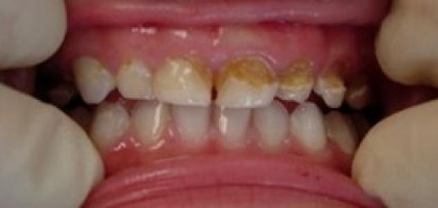علاج تسوس الأسنان عند الأطفال