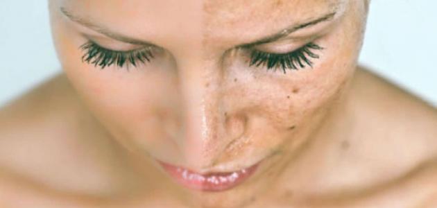 التخلص من البقع السوداء في الوجه