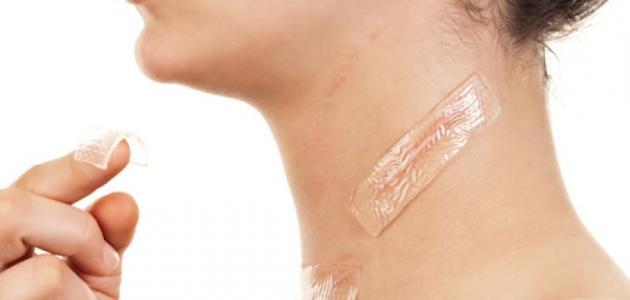 حلول طبيعية للتخلص من آثار الجروح وحفر الوجه