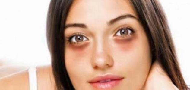 علاج الهالات السوداء حول العين بطريقة سريعة