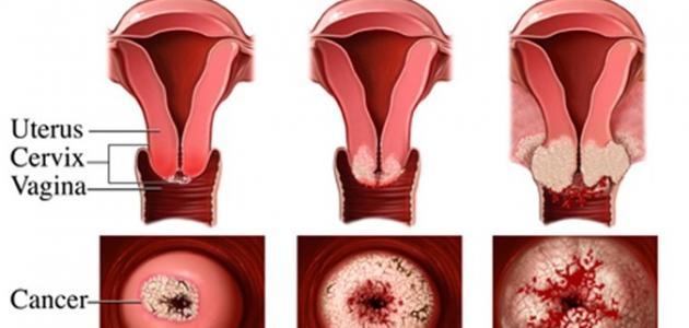 أعراض قرحة الرحم وعلاجها