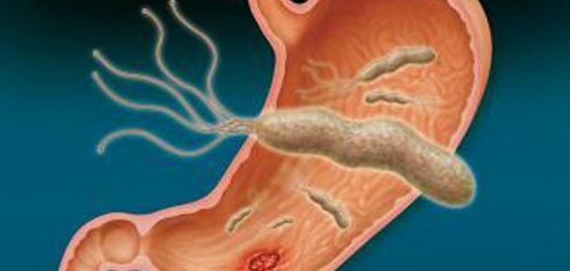 أعراض جرثومة المعدة وعلاجها بالأعشاب