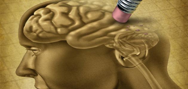 أعراض ضمور المخ عند الأطفال