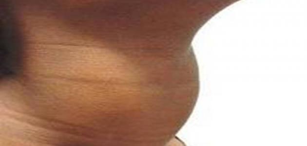 أعراض تضخم الغدة الدرقية عند النساء