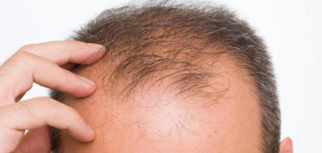 علاج صلع الشعر