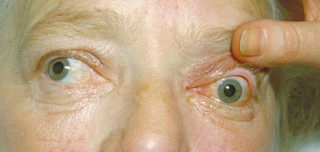 علاج جحوظ العين