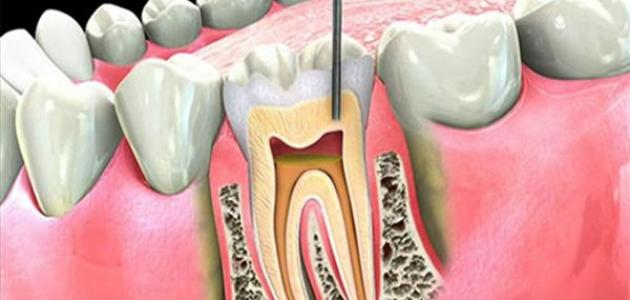 علاج عصب الأسنان في البيت - موضوع