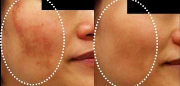 وصفة لإزالة الكلف من الوجه
