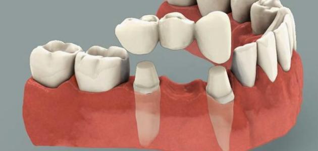 مواد صناعة الاسنان