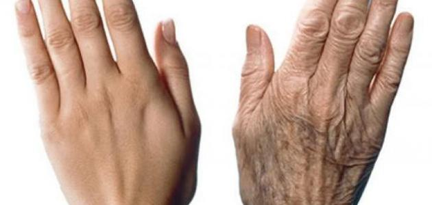 إزالة تجاعيد اليدين