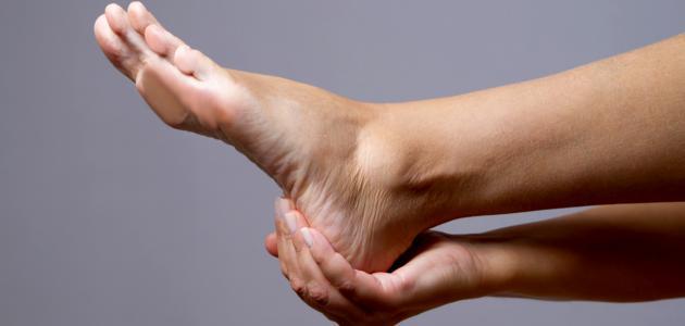 علاج تشقق كعب القدمين