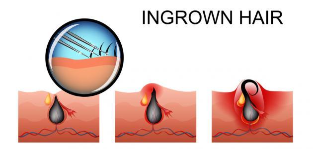 أسباب نمو الشعر تحت الجلد