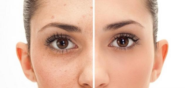 إزالة البثور من الوجه