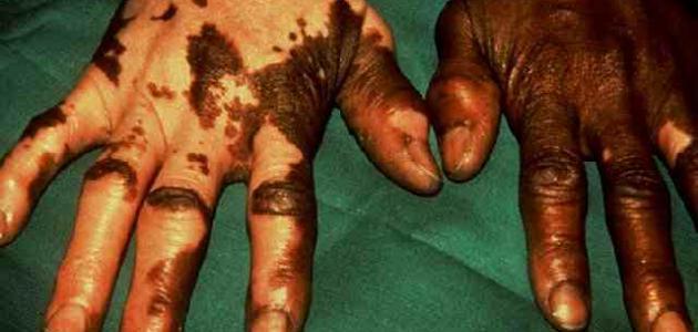 أسباب مرض البرص