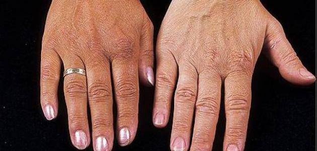 أسباب تغير لون الجلد