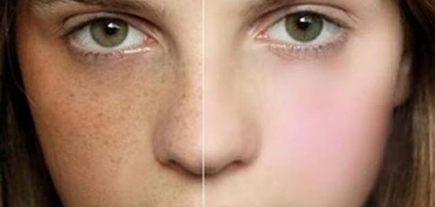 التخلص من الكلف في الوجه