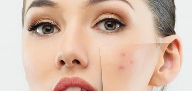 آثار حبوب الوجه
