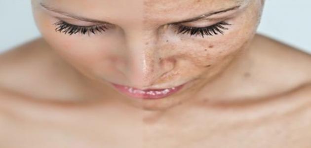 طريقة إزالة الكلف من الوجه