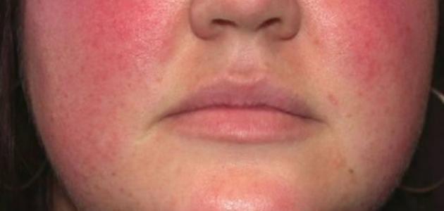 التكيف اللينينية إزعاج احمرار الوجه وضغط الدم Dsvdedommel Com