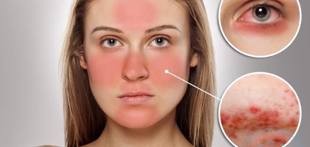 إزالة حروق الشمس من الوجه
