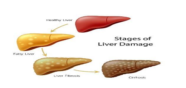 أعراض تشمع الكبد