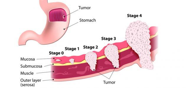 سرطان المعدة وأعراضه