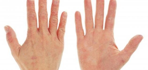 جاف تأرجح معاينة علاج جفاف اليدين من المنظفات Dsvdedommel Com