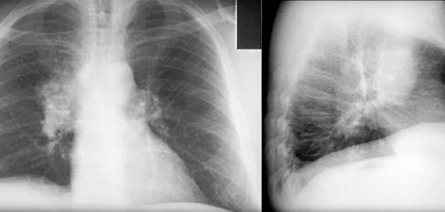 أسباب سرطان الرئة