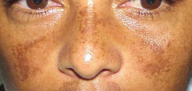 أسباب سواد الوجه