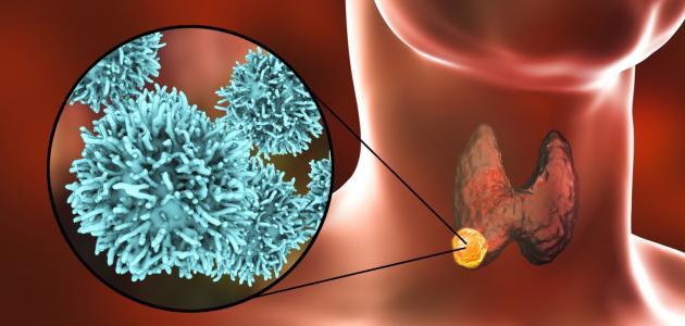 سرطان الغدة الدرقية موضوع