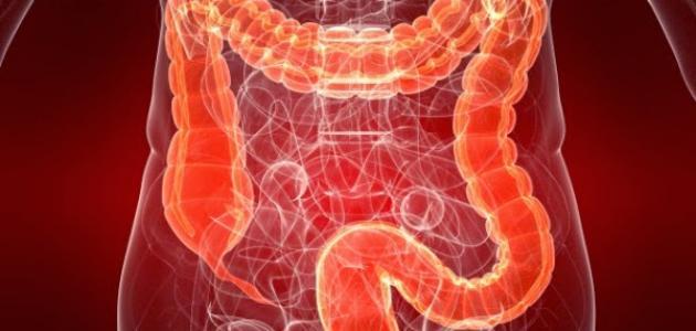 أعراض مرض سرطان القولون
