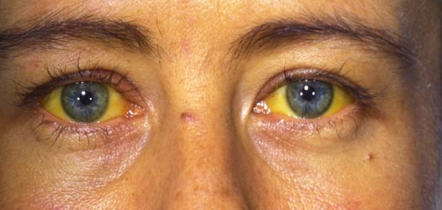 أعراض التهاب الكبد الوبائي ب