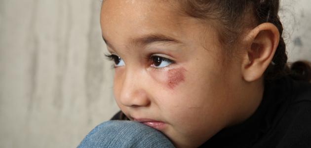 سوء المعاملة للأطفال