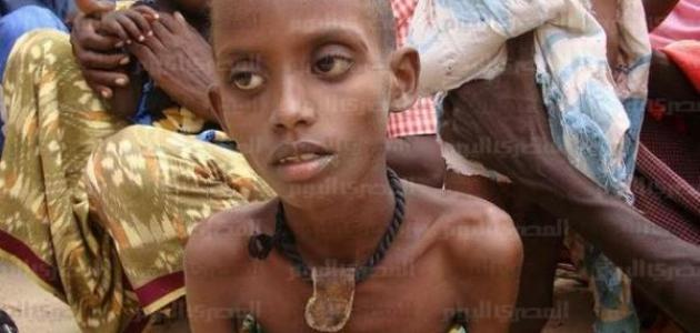 أمراض سوء التغذية