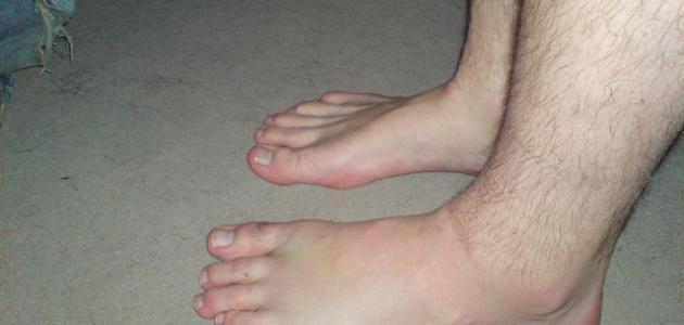 أسباب تورم القدمين عند الرجال