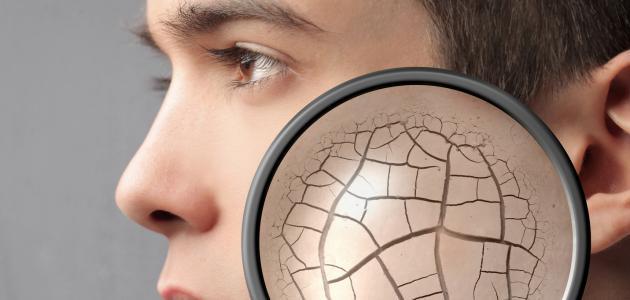 التشققات الجلدية و علاجها