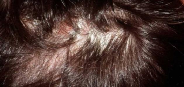 أعراض التهاب بصيلات الشعر وعلاجه
