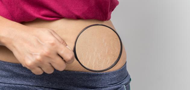 ما هو تمدد الجلد و ما أسبابه