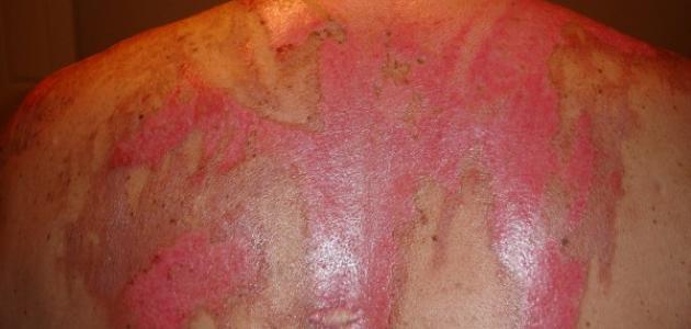 طريقة إزالة آثار الحروق القديمة من الجسم