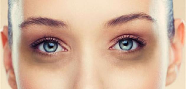 سبب الهالات السوداء تحت العين وعلاجها