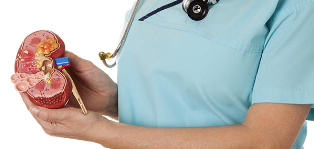 أسباب التهاب المثانة