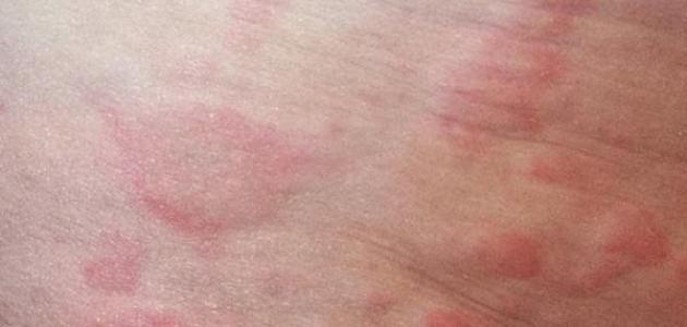 أعراض حساسية الدم