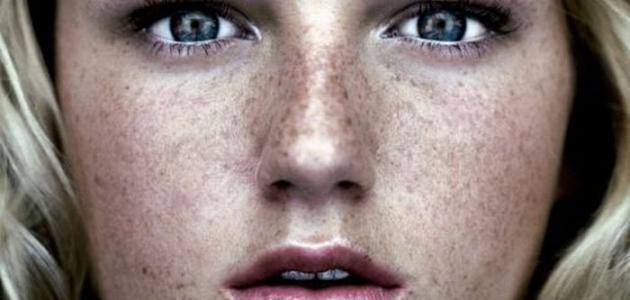 طرق لإزالة النمش من الوجه