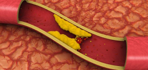 ما هو ارتفاع كوليسترول الدم ؟