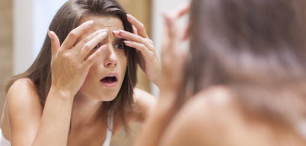 ظهور حبوب في الوجه أثناء الحمل